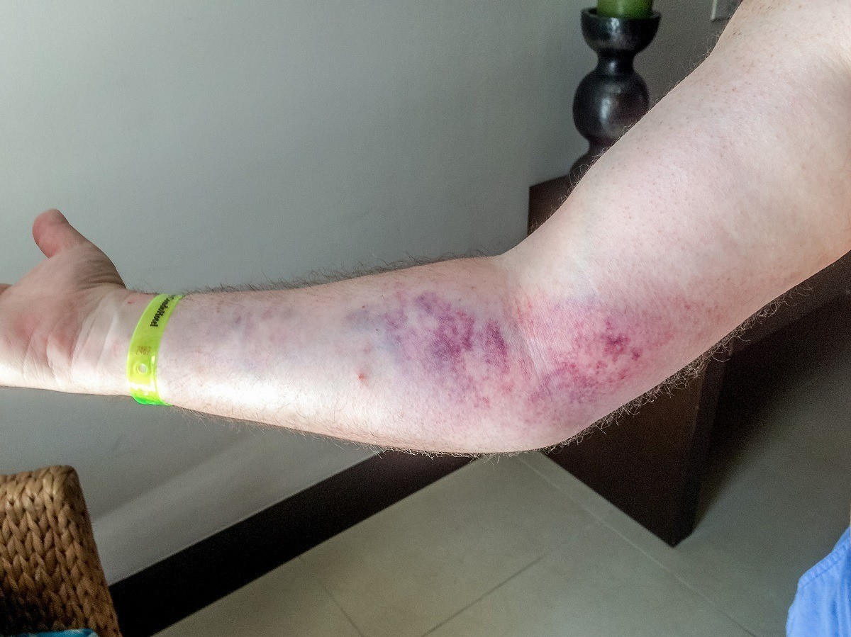 Lance's arm turned purple after bad accident in Mexico
